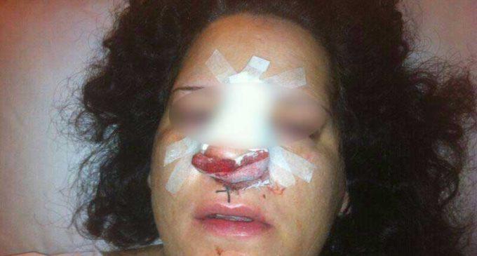 El Estado no aclara por qué una mujer terminó con la nariz rota tras ser detenida