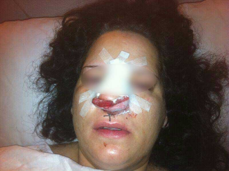 María -nombre ficticio- ha denunciado a España ante la ONU por abusos policiales. policia pro derechos humanos